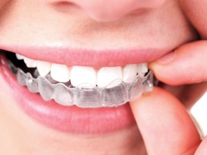 Invisalign or Braces? How to Make the Right Decision with Fine Orthodontics