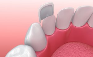 Diagram of veneer reshaping damaged tooth for a more beautiful smile at Fine Orthodontics Sydney