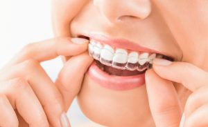 How long does Invisalign take? Wear the trays daily to straighten teeth.