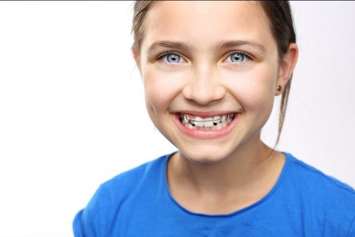 Orthodontic plates apply gentle forces to specific teeth, especially in children