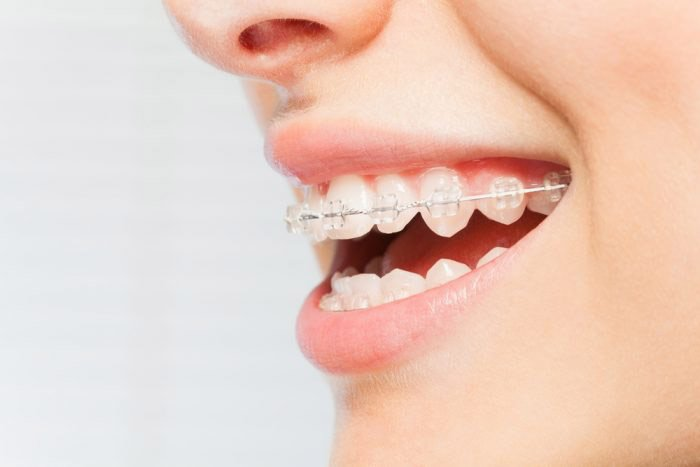 fast orthodontics for less time in braces